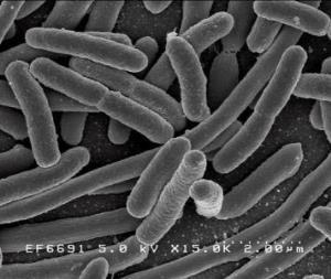 E. coli O157:H7: What is it and why is it important? Escherichia coli, E. coli Large group of bacteria Commonly found in the intestines of humans and animals Most strains are harmless http://www.